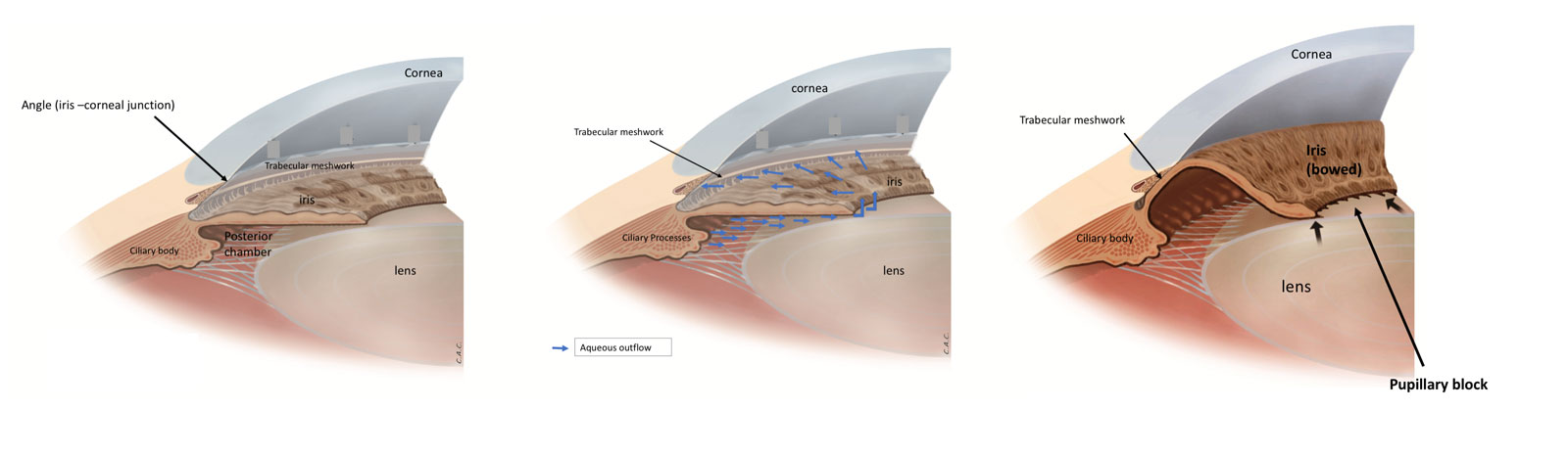 Angle closure glaucoma Fig. 1