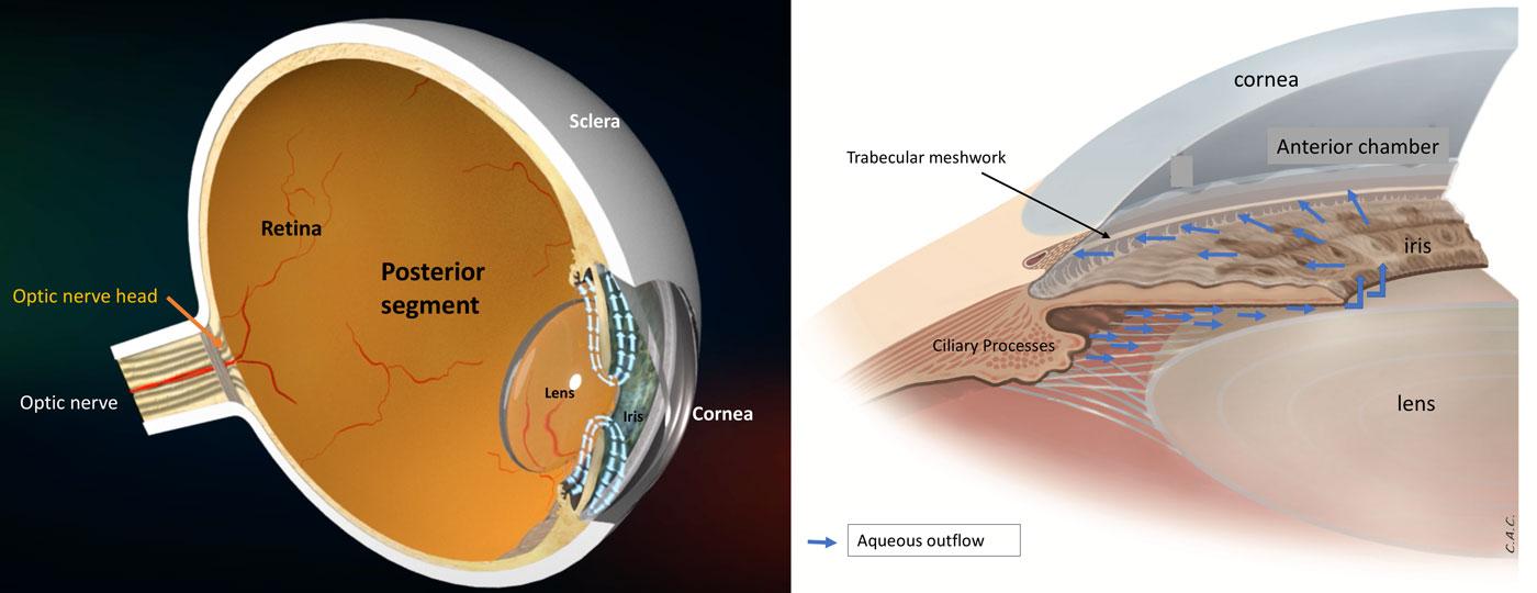 Open angle glaucoma Fig. 1