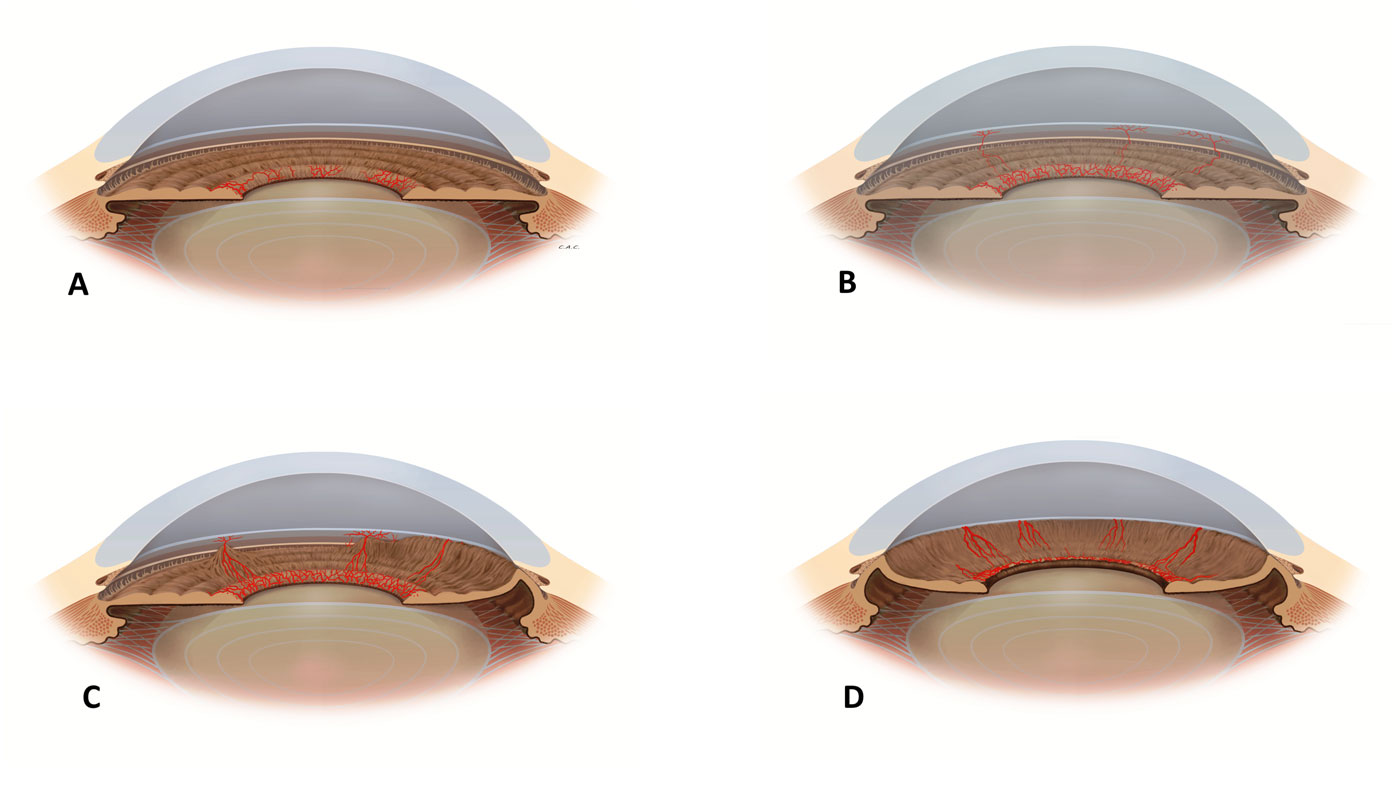 Secondary glaucoma –  Can diabetes cause glaucoma? Neovascular glaucoma Fig. 1