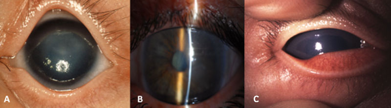 Congenital glaucoma Fig. 2