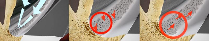 Open angle glaucoma Fig. 3