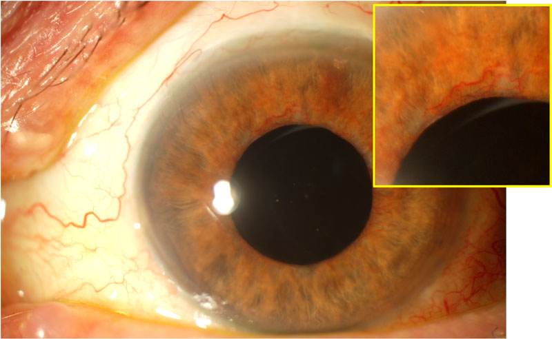 Secondary glaucoma –  Can diabetes cause glaucoma? Neovascular glaucoma Fig. 2