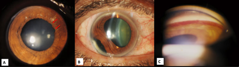 Secondary glaucoma – Can glaucoma occur after injury (trauma) to the eye? Fig. 1