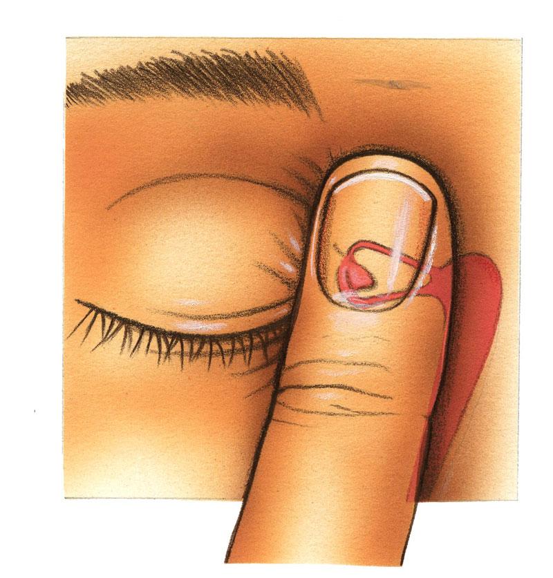¿Cuál es la forma correcta de instilar las gotas oculares? Fig. 1