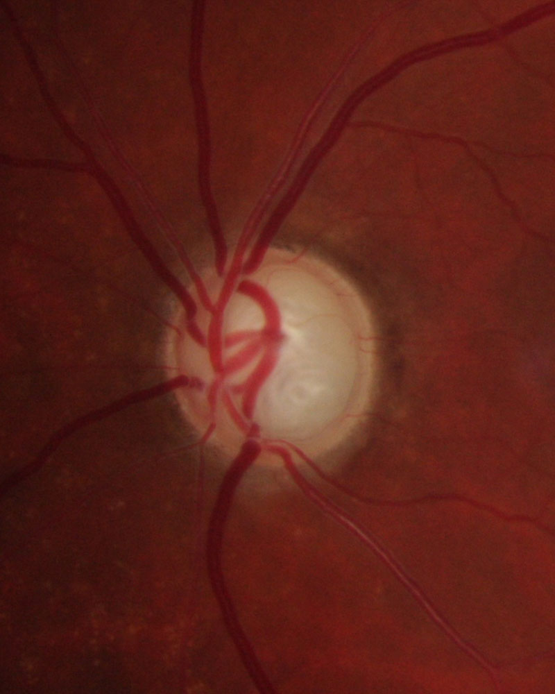 Glaucomatous optic disc Fig. 3