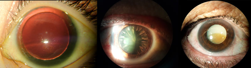 Is glaucoma associated with cataract Fig. 2